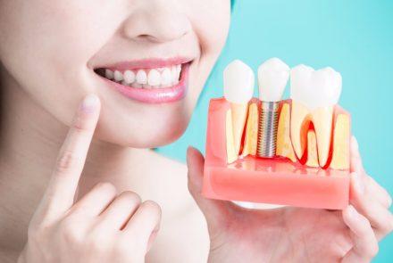los cuidados de los implantes dentales adultos